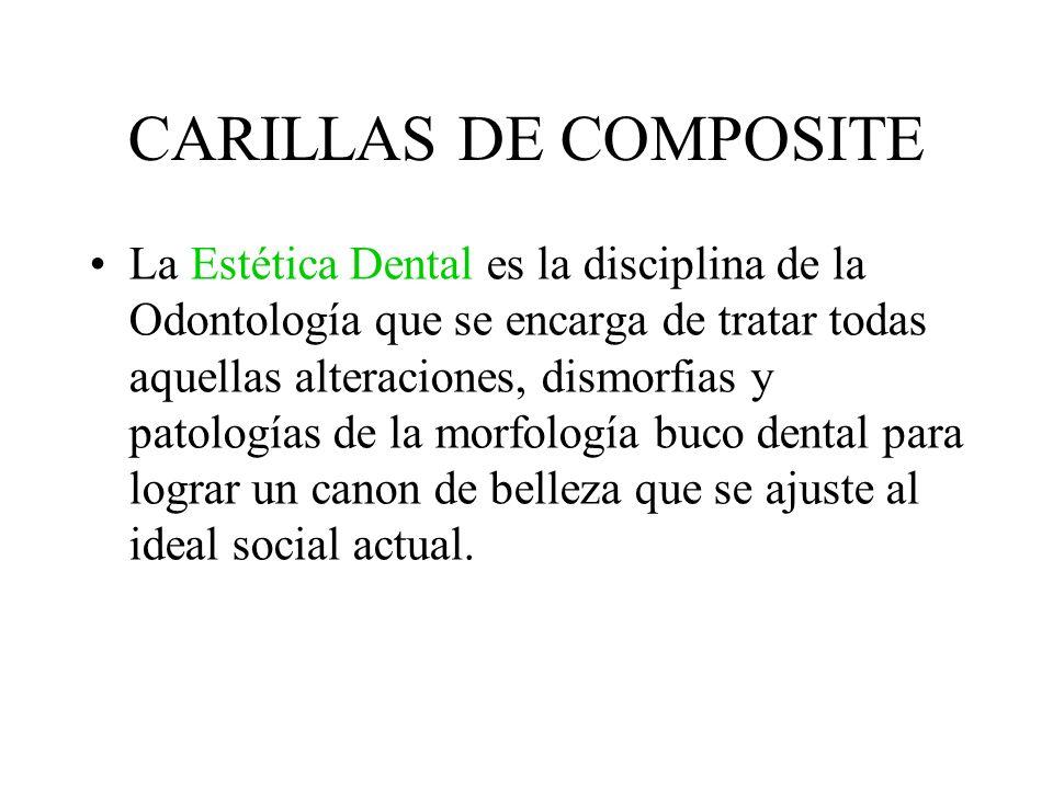 CARILLAS DE COMPOSITE