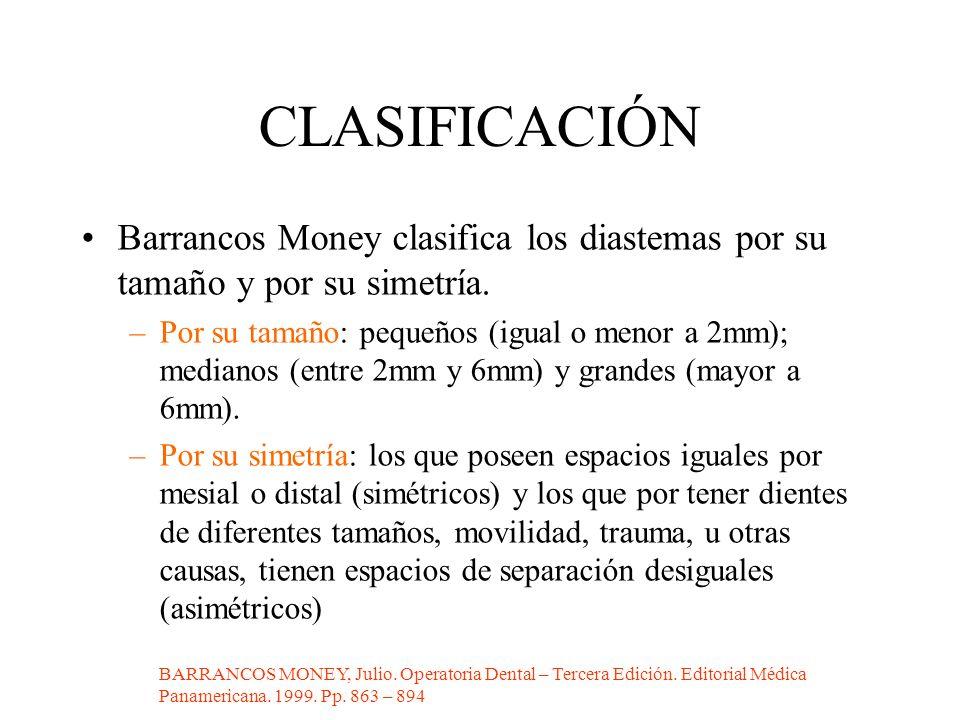 CLASIFICACIÓN Barrancos Money clasifica los diastemas por su tamaño y por su simetría.