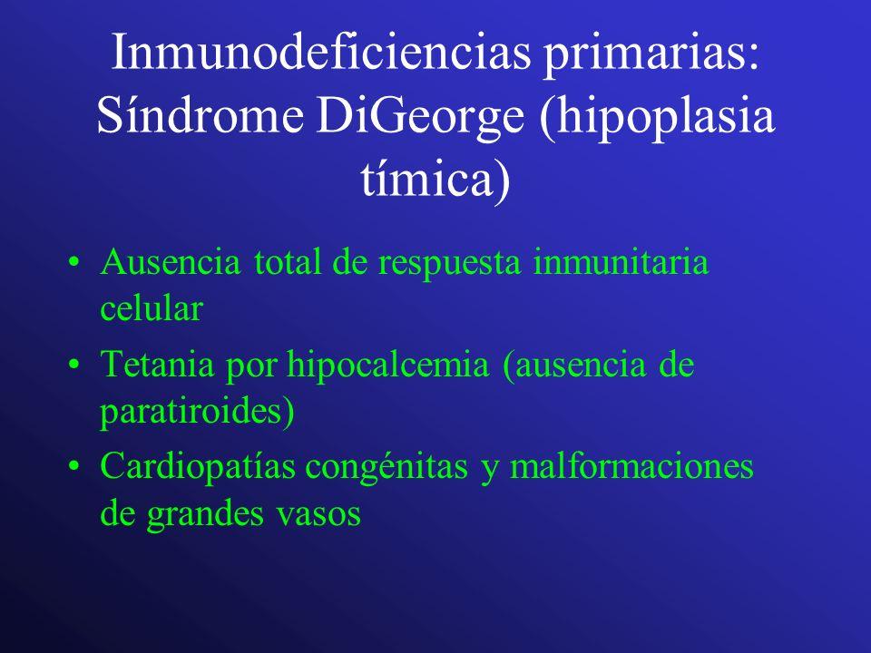 Inmunodeficiencias primarias: Síndrome DiGeorge (hipoplasia tímica)