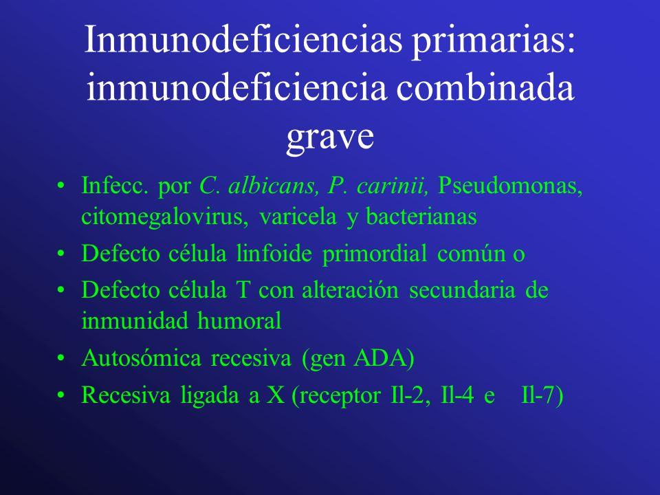 Inmunodeficiencias primarias: inmunodeficiencia combinada grave