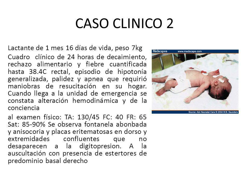 CASO CLINICO 2 Lactante de 1 mes 16 días de vida, peso 7kg