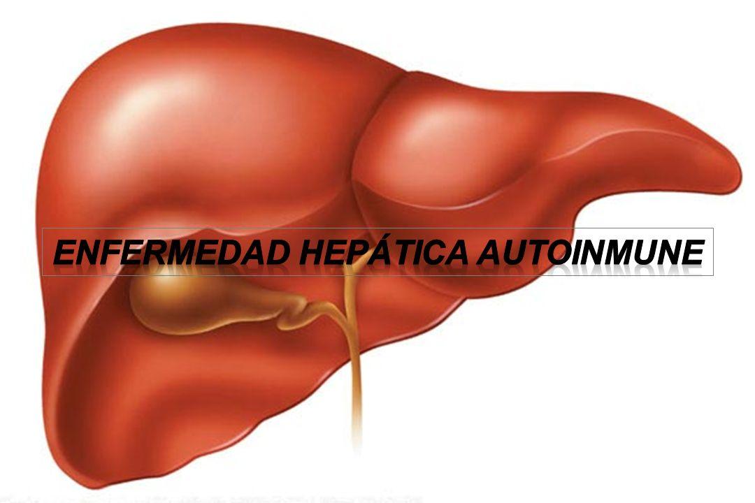 Enfermedad Hepática Autoinmune