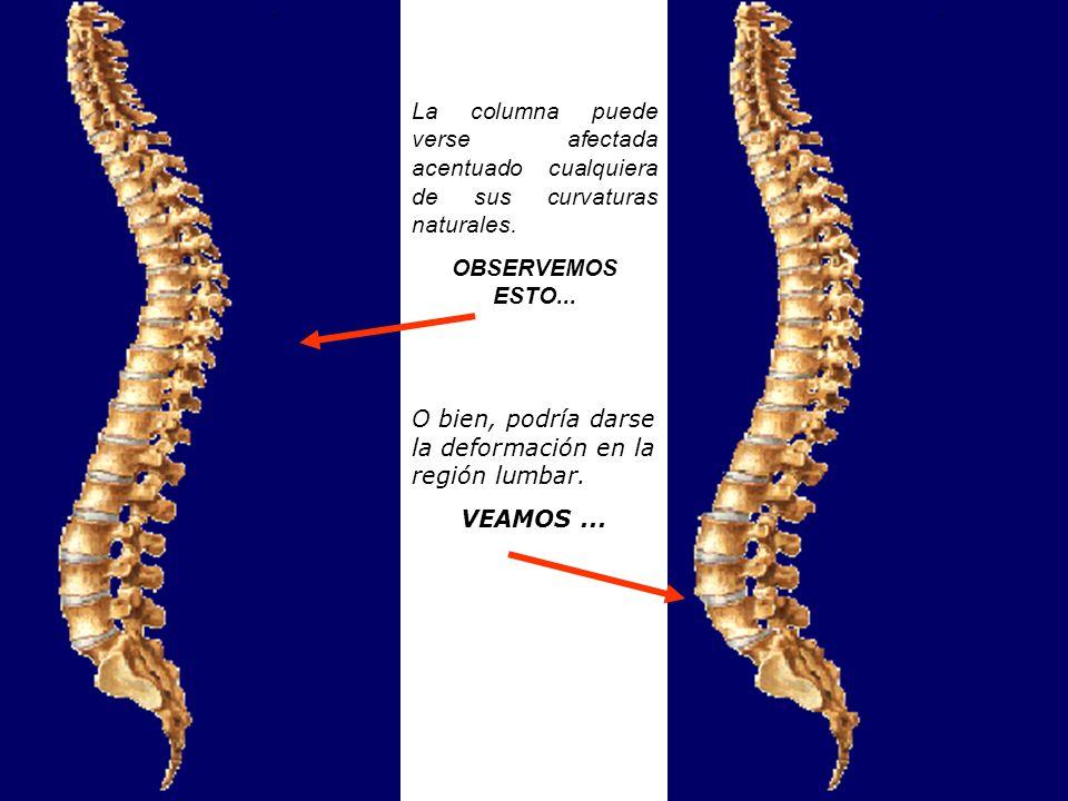 La columna puede verse afectada acentuado cualquiera de sus curvaturas naturales.