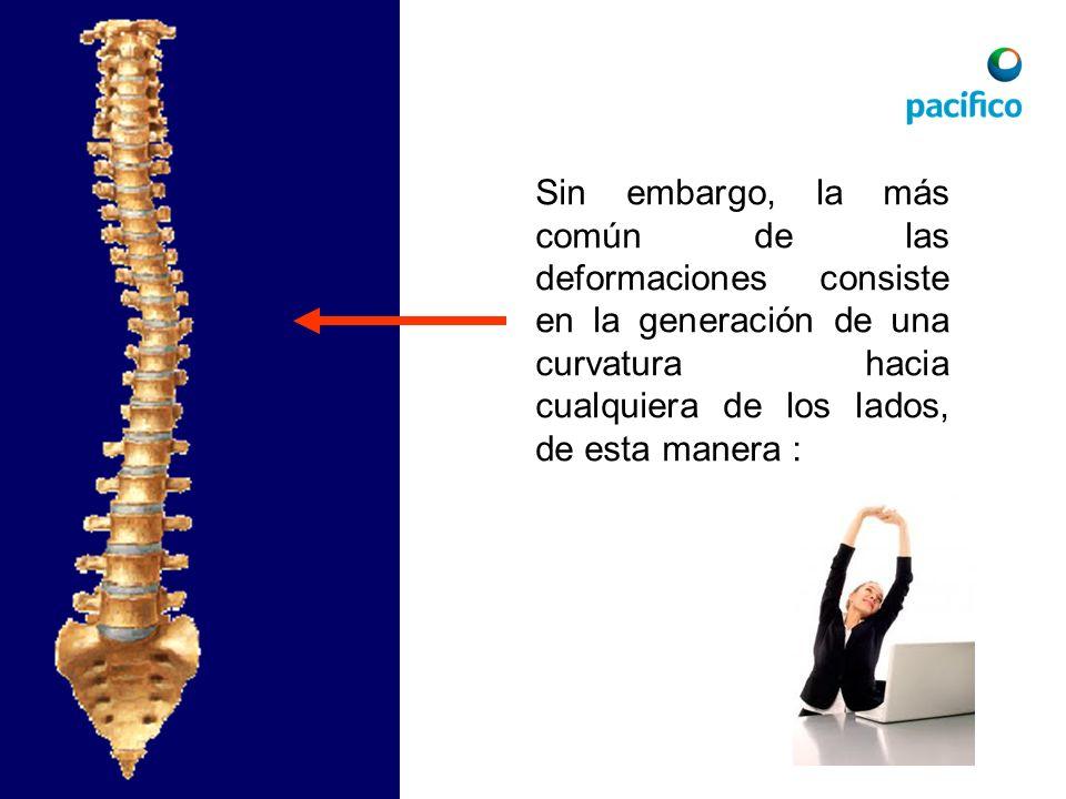 Sin embargo, la más común de las deformaciones consiste en la generación de una curvatura hacia cualquiera de los lados, de esta manera :