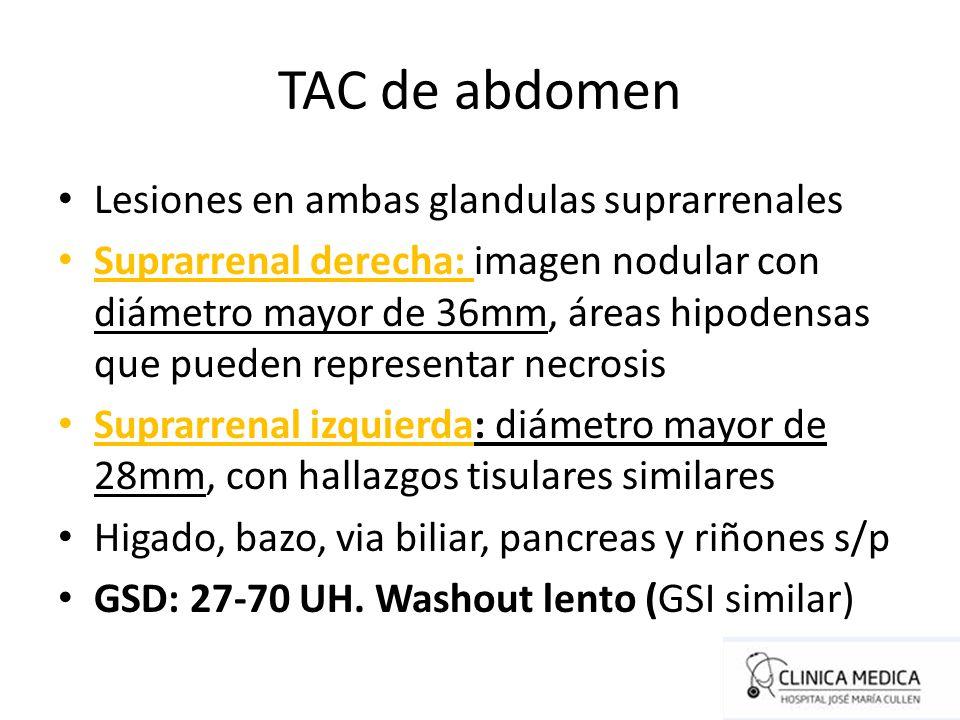 TAC de abdomen Lesiones en ambas glandulas suprarrenales