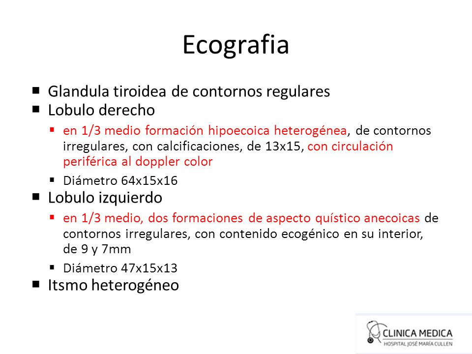 Ecografia Glandula tiroidea de contornos regulares Lobulo derecho