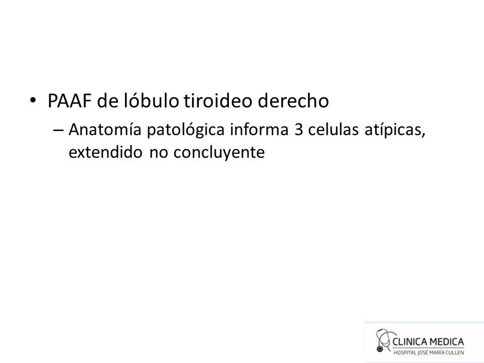 PAAF de lóbulo tiroideo derecho