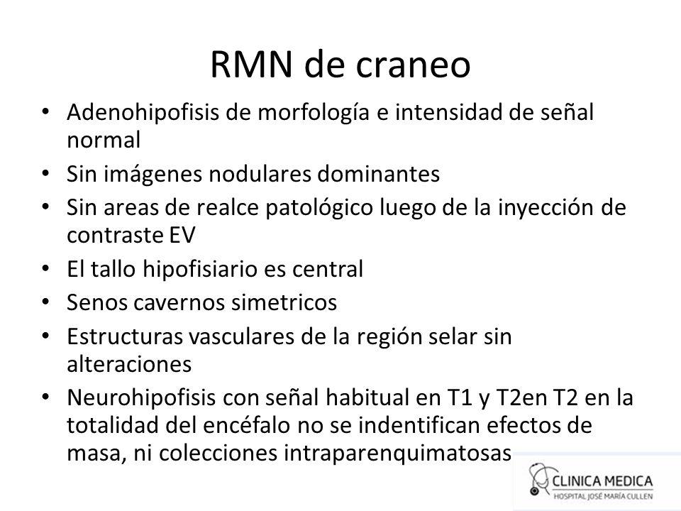 RMN de craneo Adenohipofisis de morfología e intensidad de señal normal. Sin imágenes nodulares dominantes.