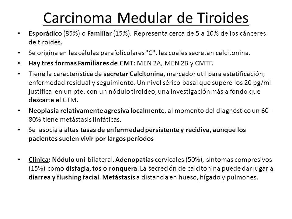 Carcinoma Medular de Tiroides