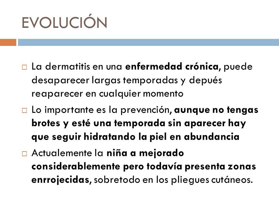 EVOLUCIÓN La dermatitis en una enfermedad crónica, puede desaparecer largas temporadas y depués reaparecer en cualquier momento.