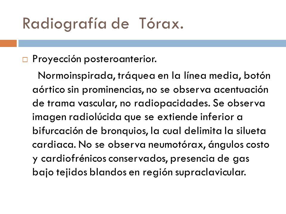 Radiografía de Tórax. Proyección posteroanterior.