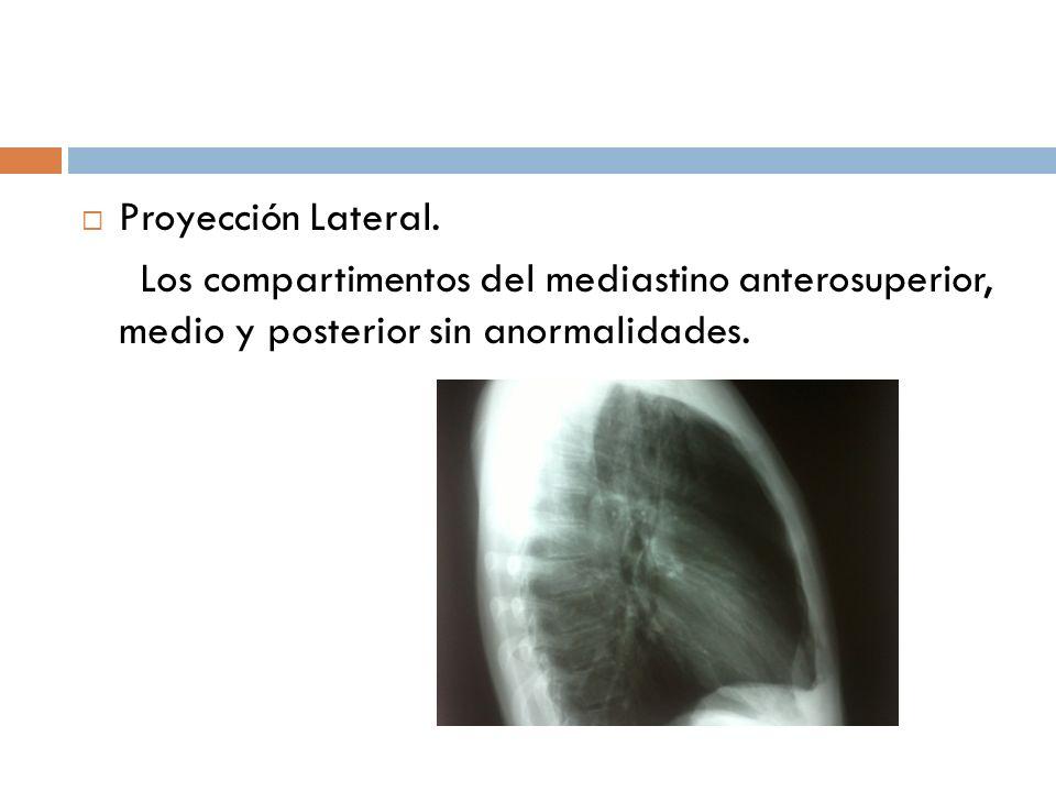 Proyección Lateral.