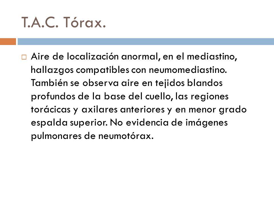 T.A.C. Tórax.