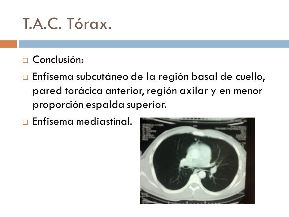 T.A.C. Tórax. Conclusión: