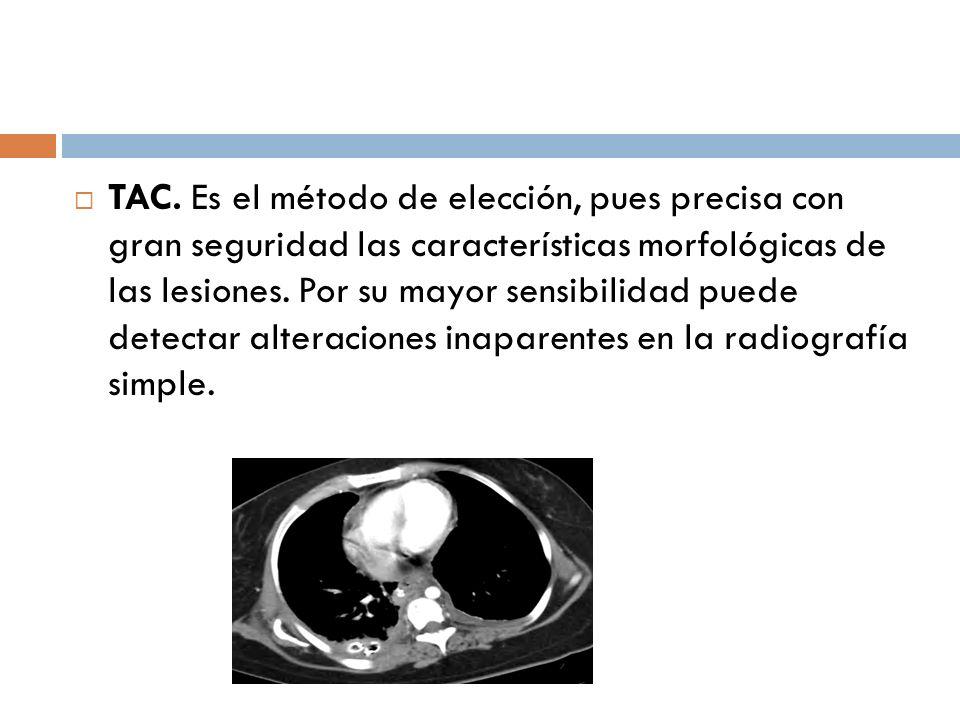 TAC. Es el método de elección, pues precisa con gran seguridad las características morfológicas de las lesiones.