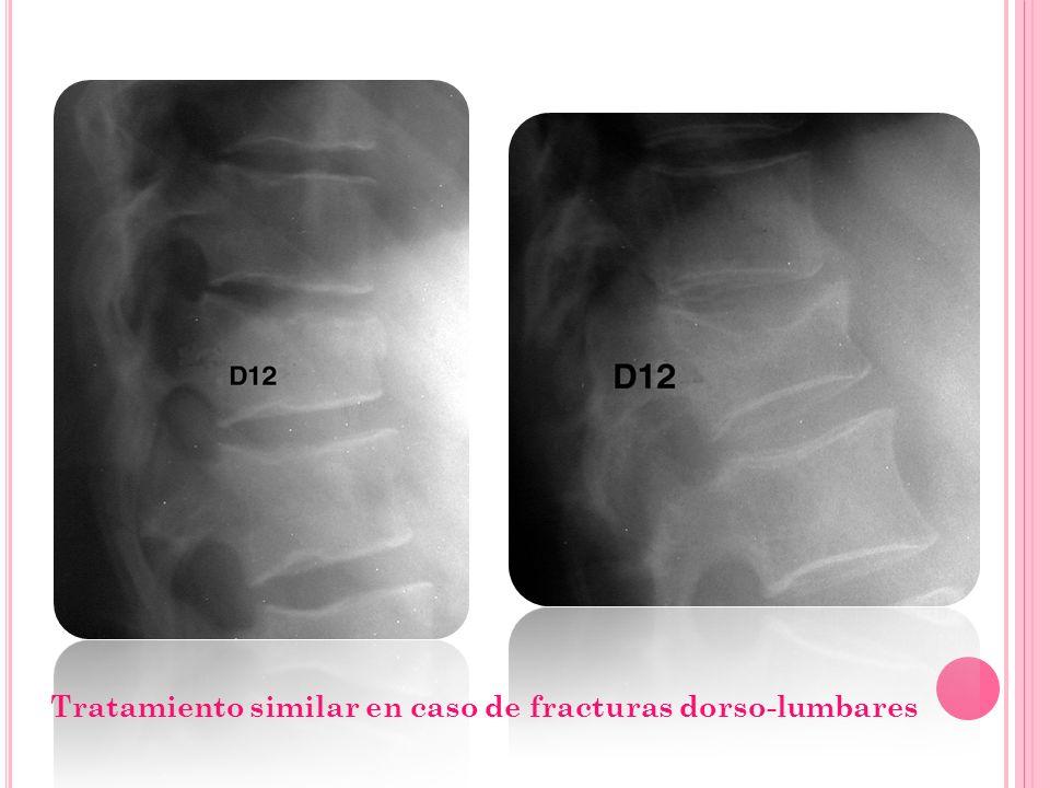 Tratamiento similar en caso de fracturas dorso-lumbares