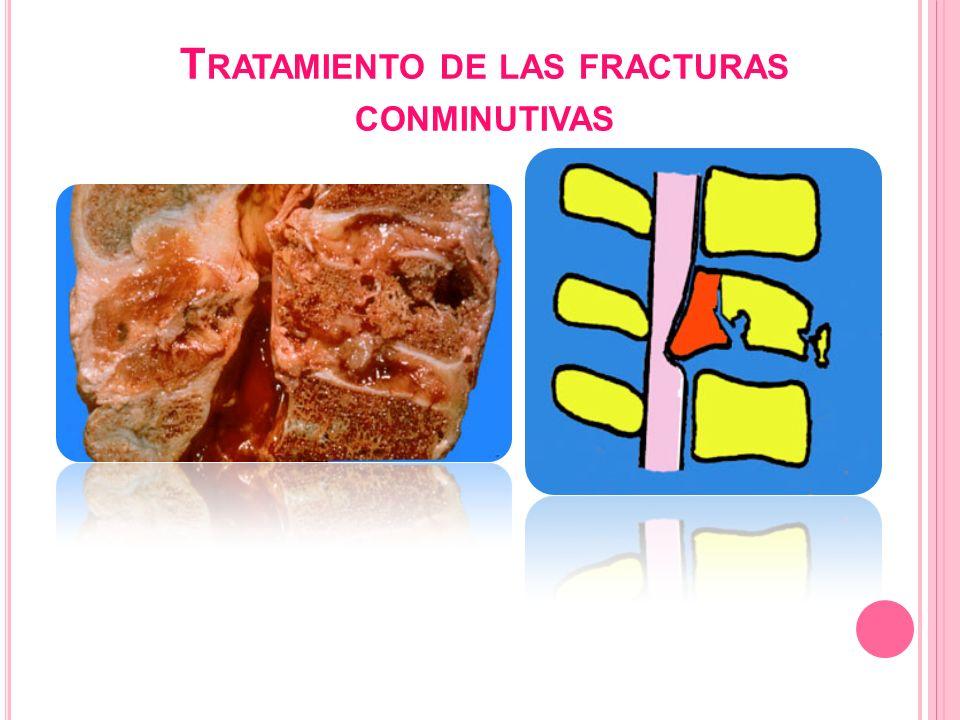 Tratamiento de las fracturas conminutivas