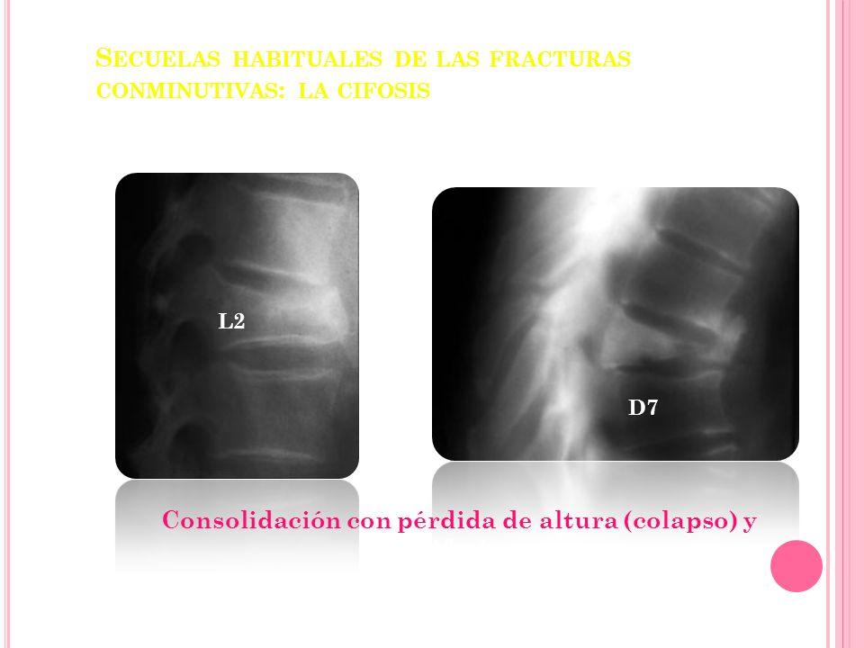 Secuelas habituales de las fracturas conminutivas: la cifosis