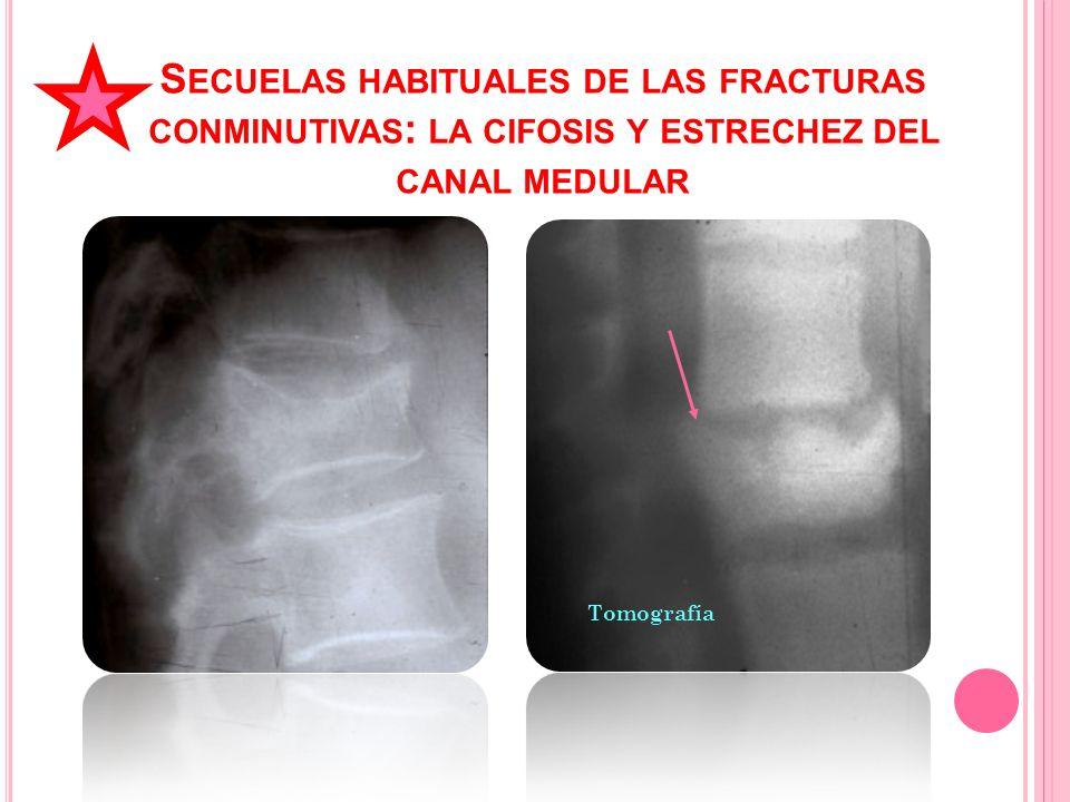 Secuelas habituales de las fracturas conminutivas: la cifosis y estrechez del canal medular