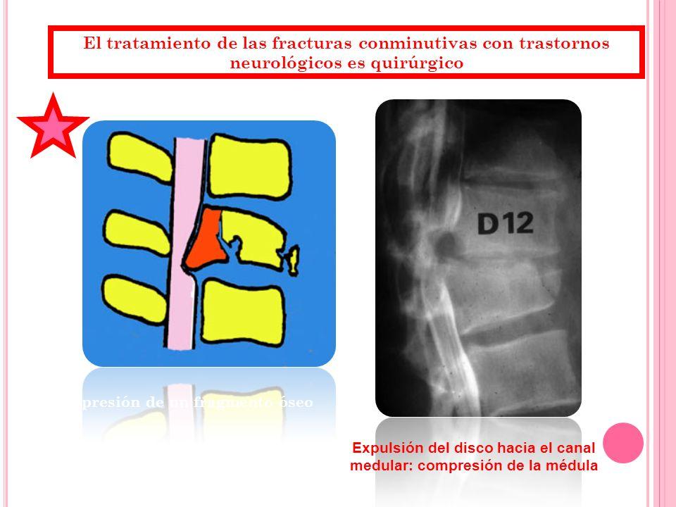 El tratamiento de las fracturas conminutivas con trastornos neurológicos es quirúrgico