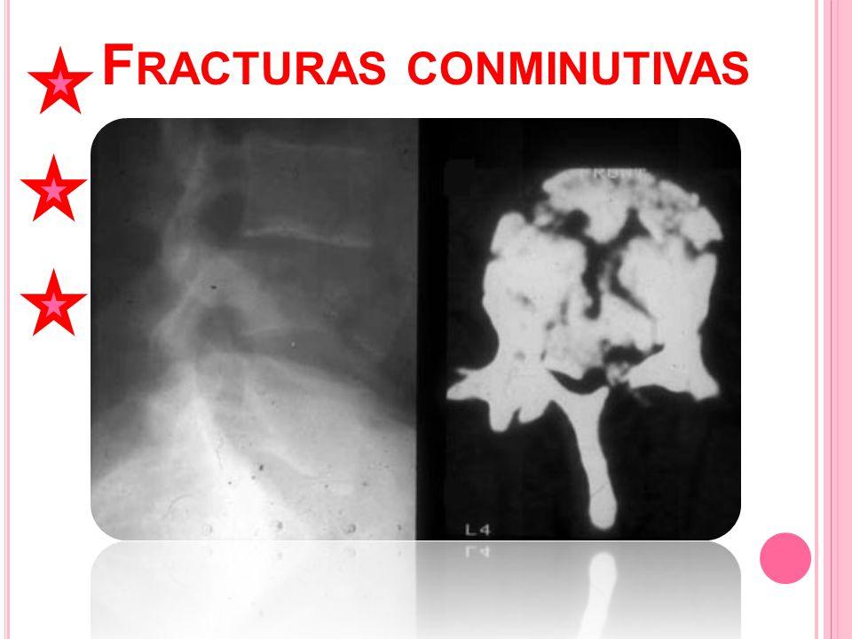 Fracturas conminutivas