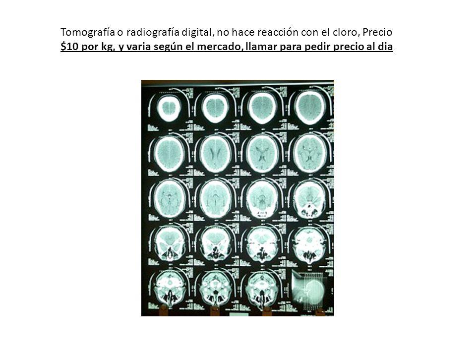 Tomografía o radiografía digital, no hace reacción con el cloro, Precio