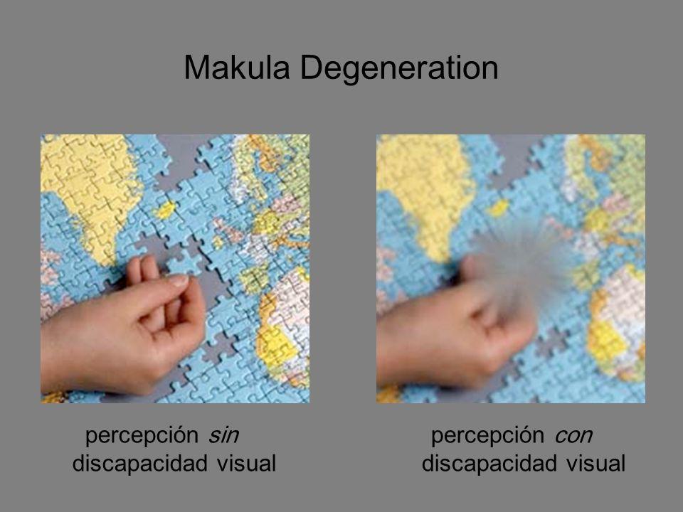 Makula Degeneration percepción sin discapacidad visual