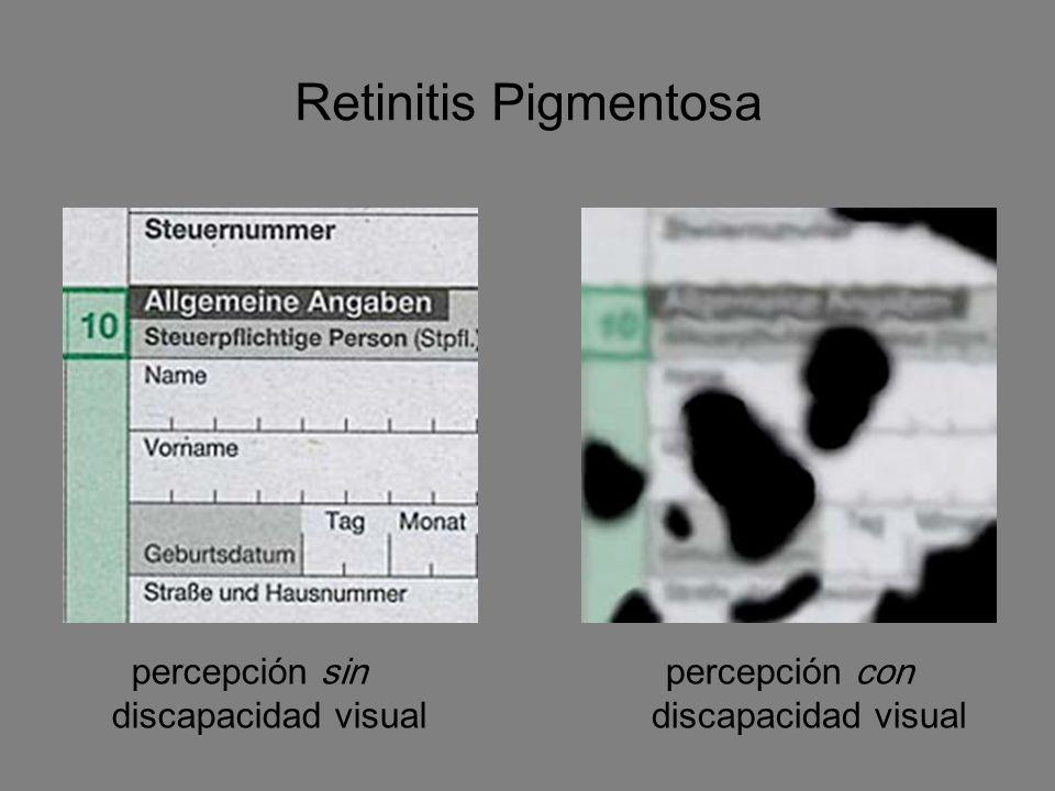 Retinitis Pigmentosa percepción sin discapacidad visual