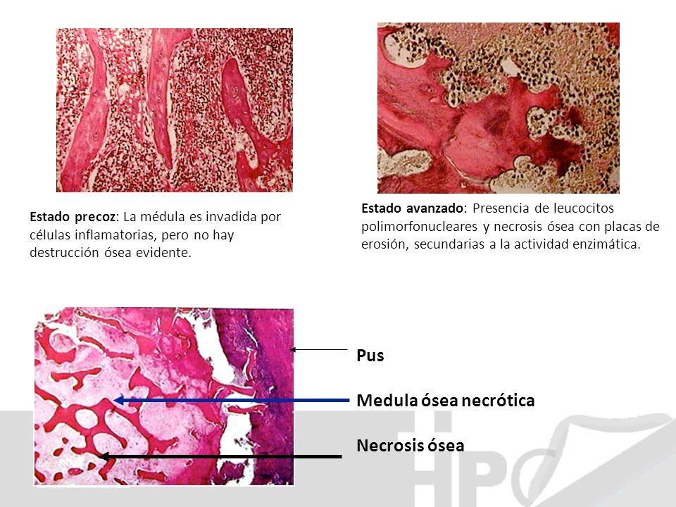 Pus Medula ósea necrótica Necrosis ósea