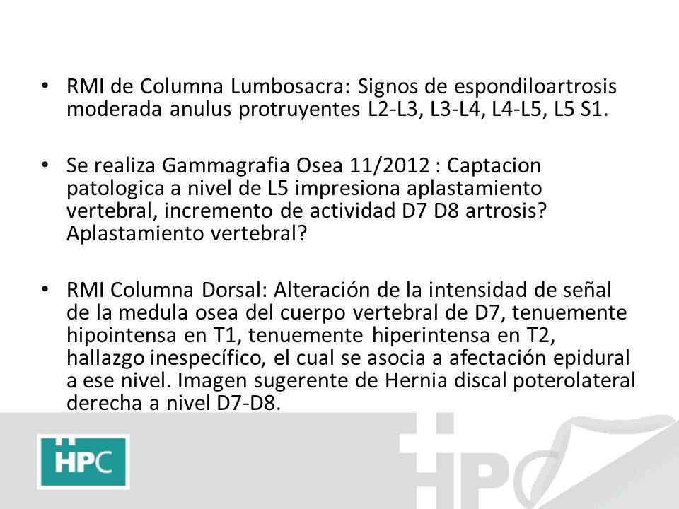 RMI de Columna Lumbosacra: Signos de espondiloartrosis moderada anulus protruyentes L2-L3, L3-L4, L4-L5, L5 S1.