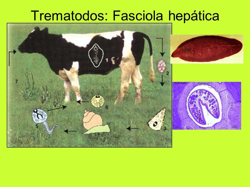 Trematodos: Fasciola hepática
