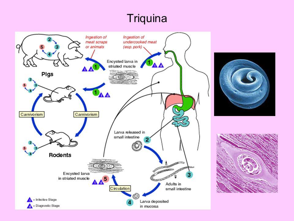 Triquina