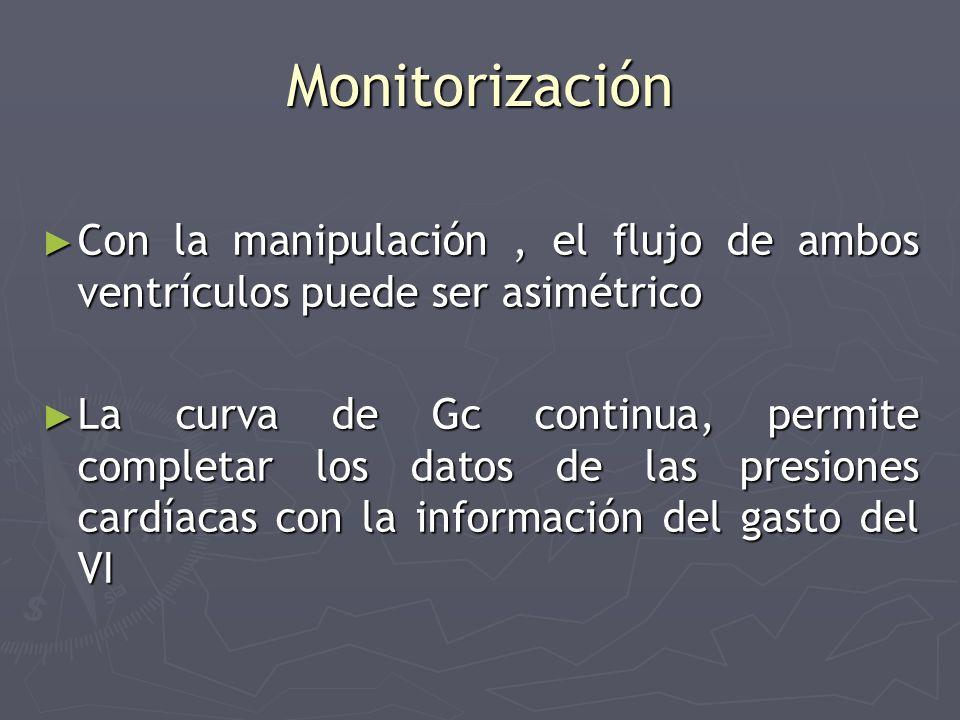 Monitorización Con la manipulación , el flujo de ambos ventrículos puede ser asimétrico.