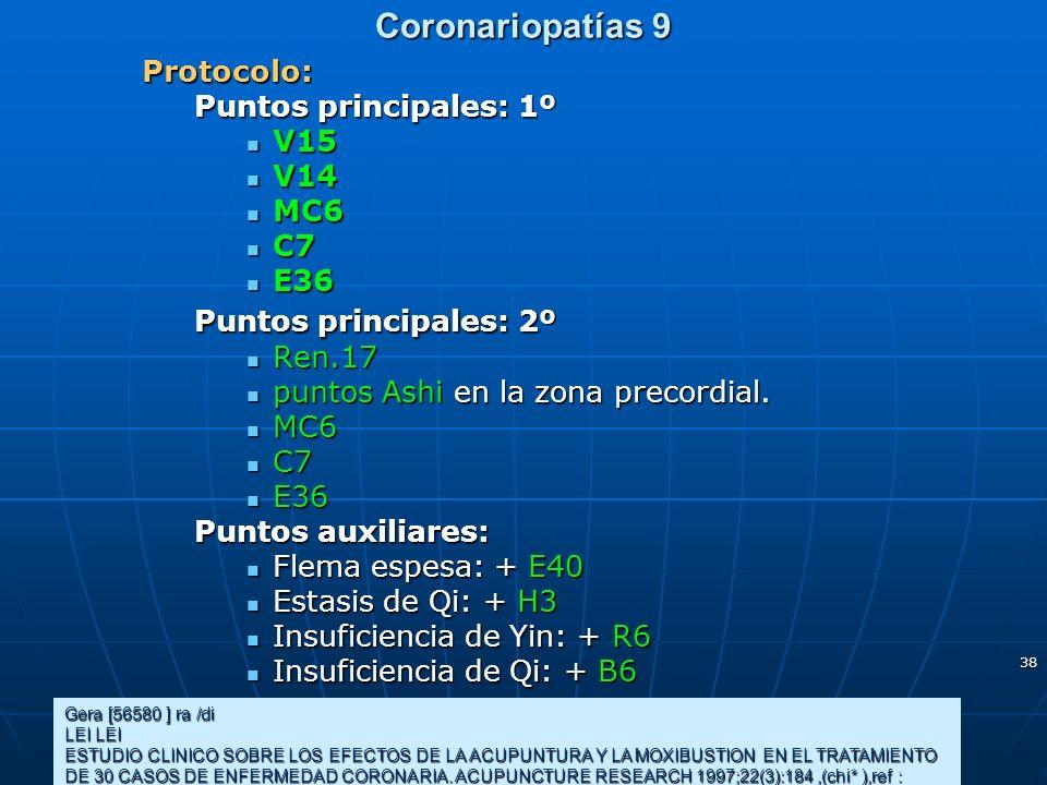 Coronariopatías 9 Protocolo: Puntos principales: 1º V15 V14 MC6 C7 E36