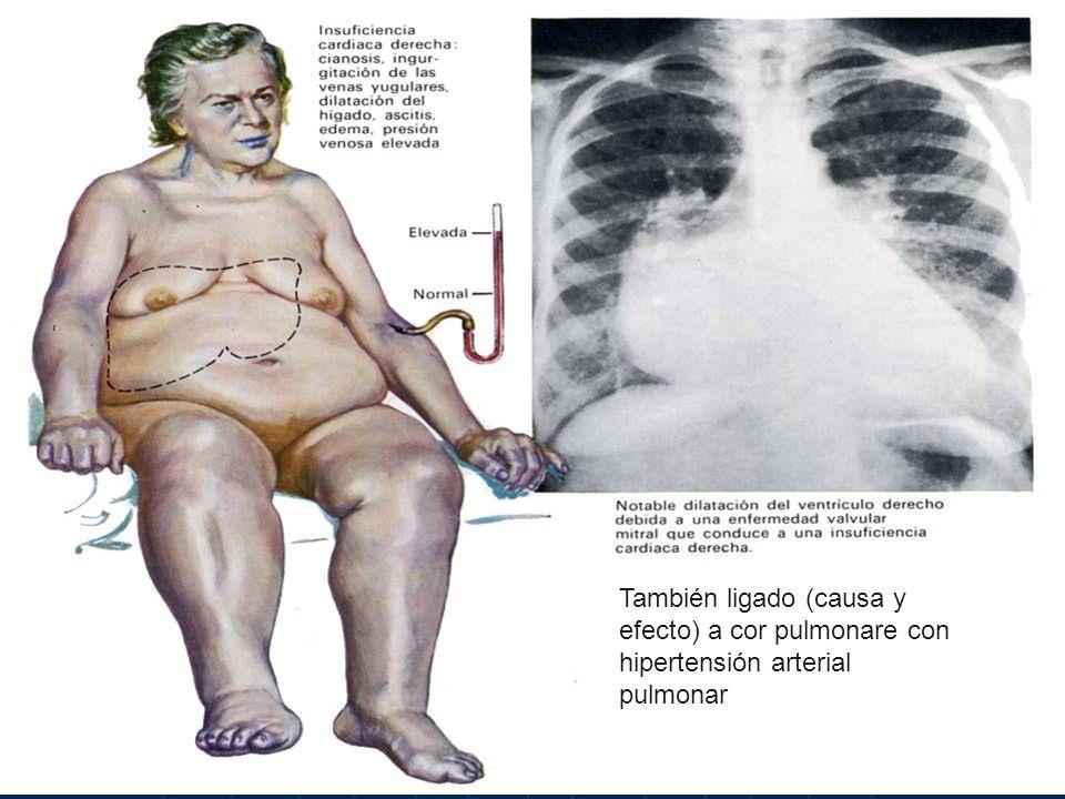 También ligado (causa y efecto) a cor pulmonare con hipertensión arterial pulmonar