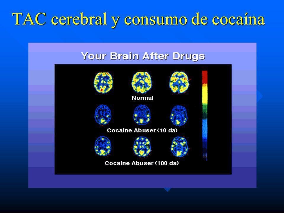 TAC cerebral y consumo de cocaína