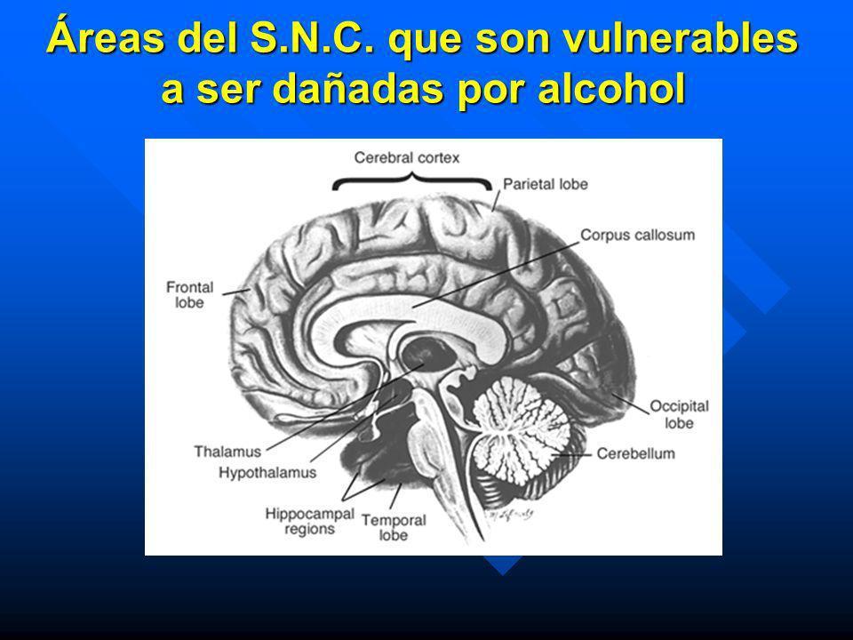 Áreas del S.N.C. que son vulnerables a ser dañadas por alcohol