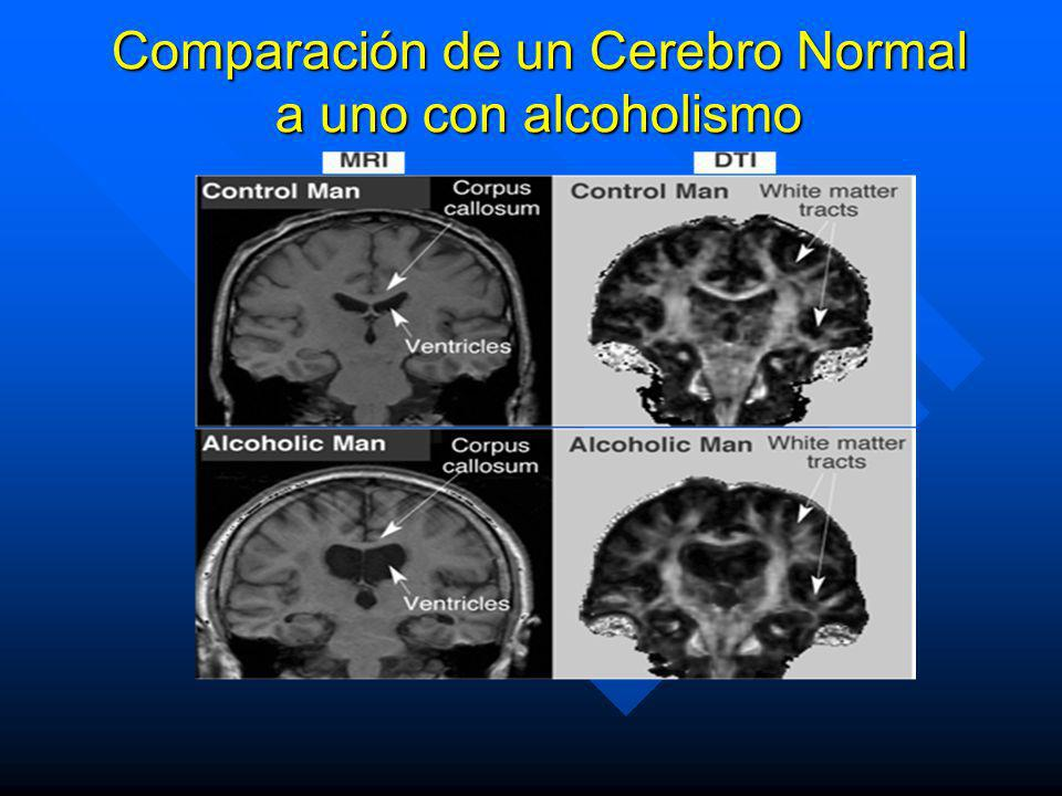 Comparación de un Cerebro Normal a uno con alcoholismo