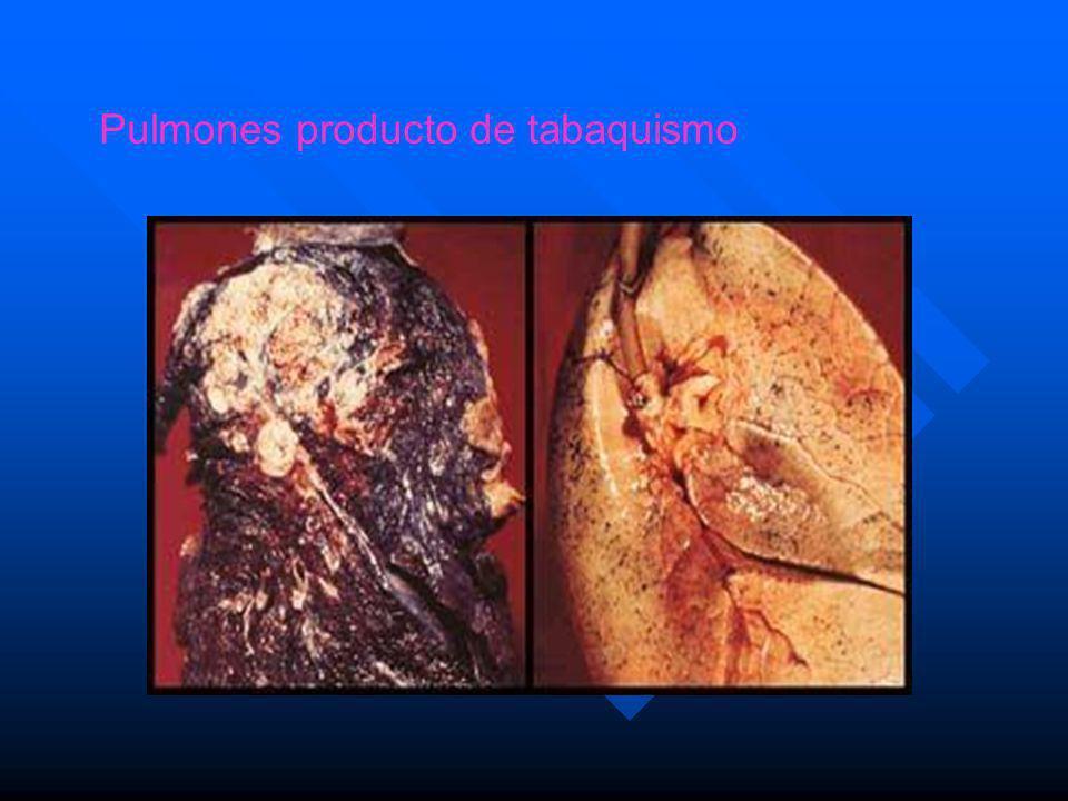 Pulmones producto de tabaquismo