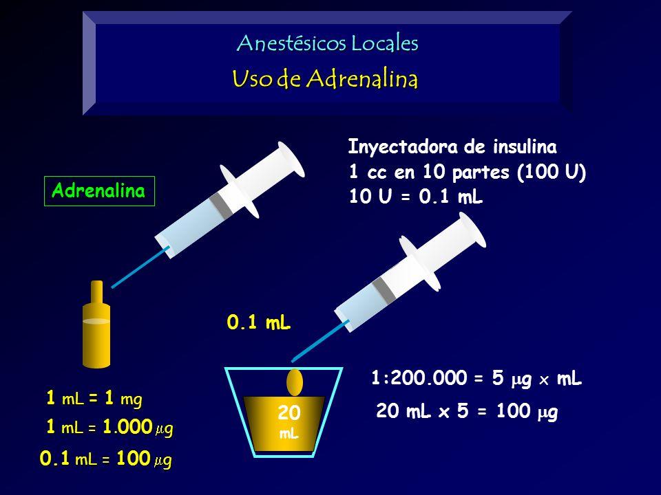 Uso de Adrenalina Anestésicos Locales Inyectadora de insulina