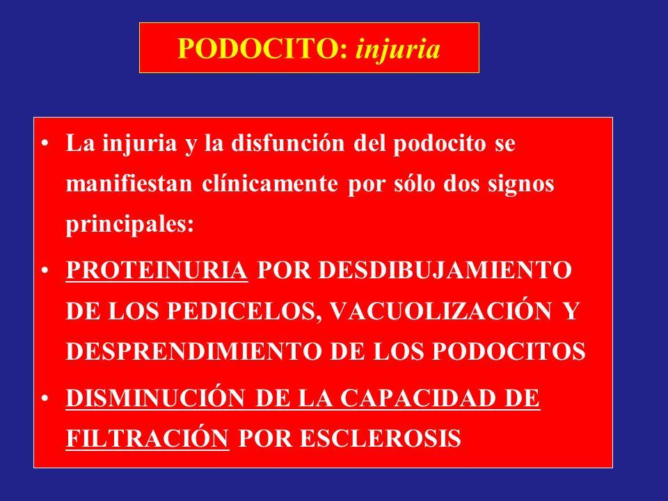 PODOCITO: injuria La injuria y la disfunción del podocito se manifiestan clínicamente por sólo dos signos principales: