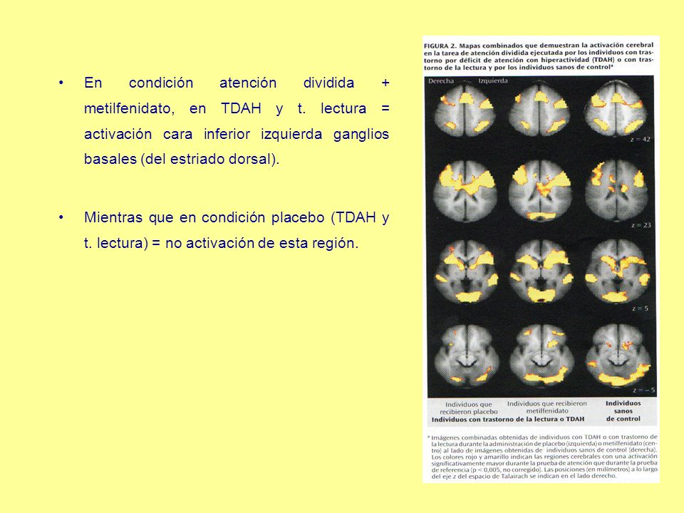 En condición atención dividida + metilfenidato, en TDAH y t