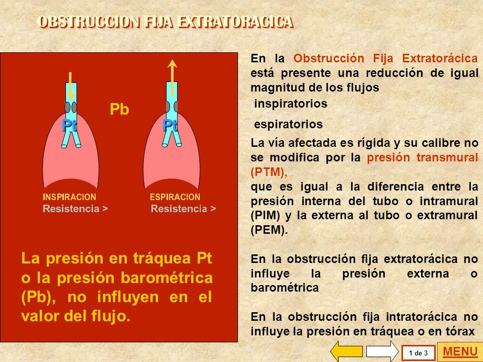 OBSTRUCCION FIJA EXTRATORACICA