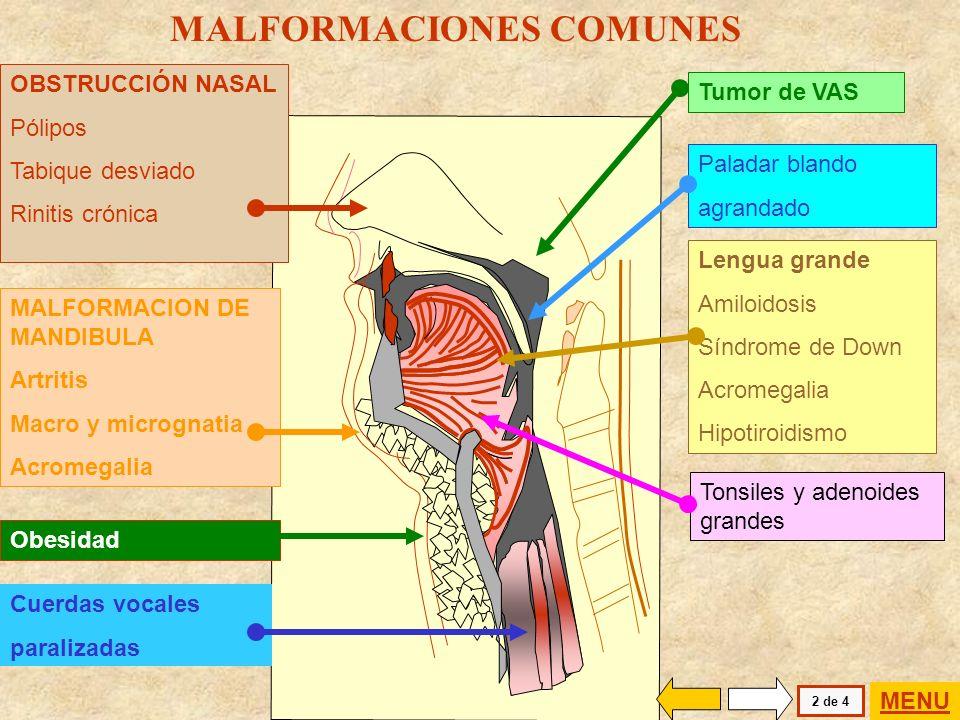 MALFORMACIONES COMUNES