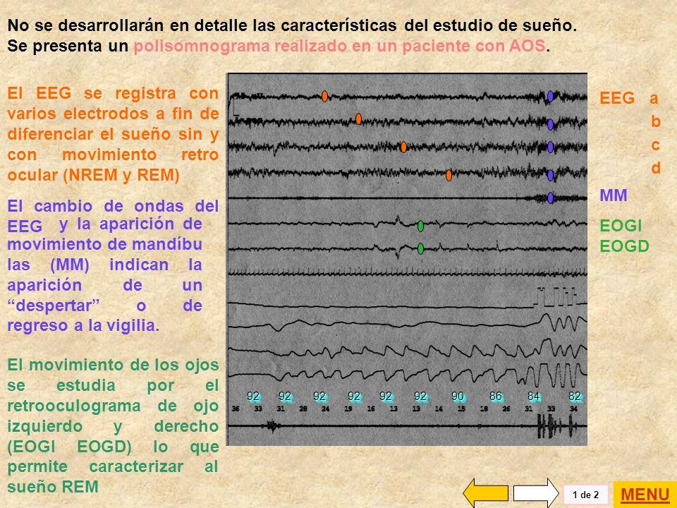 El cambio de ondas del EEG
