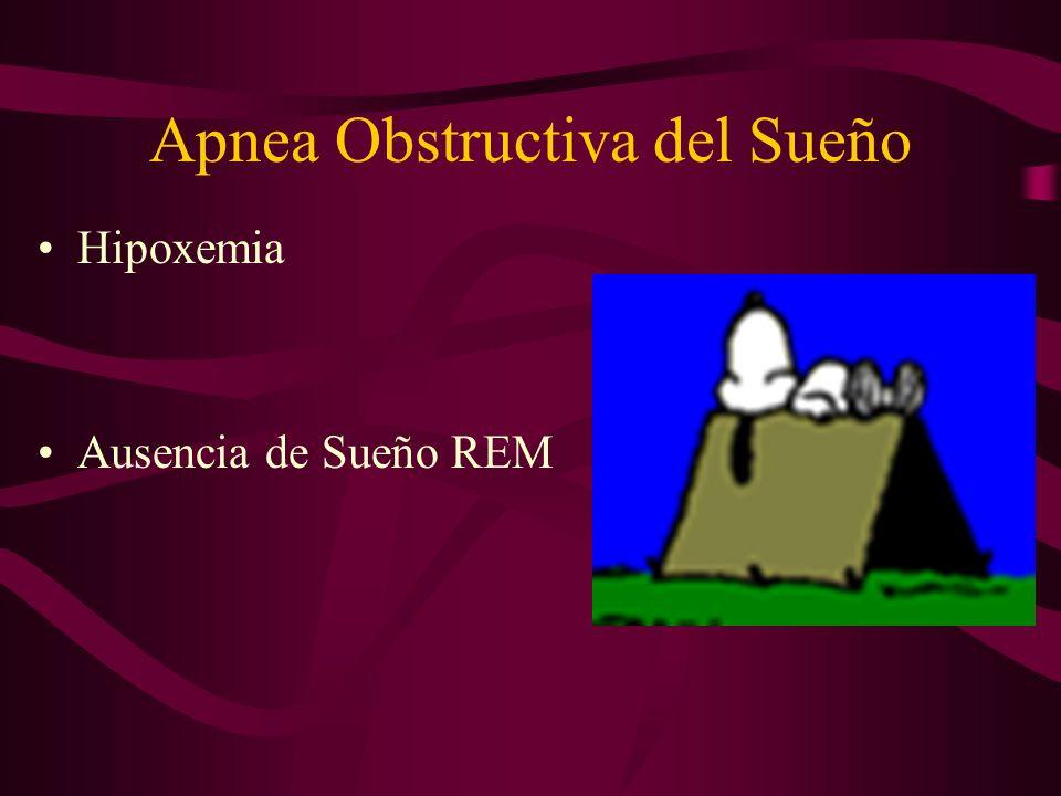 Apnea Obstructiva del Sueño
