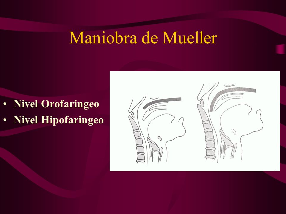 Maniobra de Mueller Nivel Orofaringeo Nivel Hipofaringeo