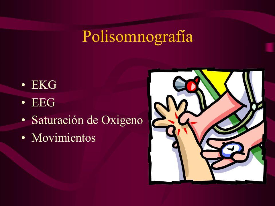 Polisomnografía EKG EEG Saturación de Oxigeno Movimientos