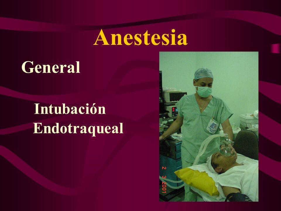 Anestesia General Intubación Endotraqueal