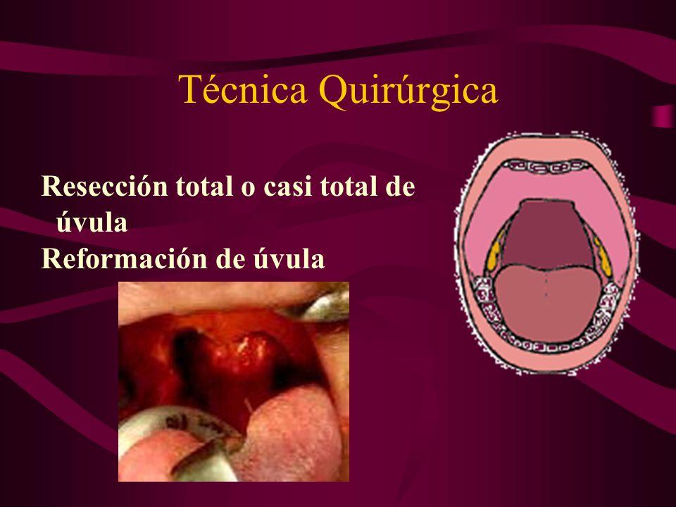 Técnica Quirúrgica Resección total o casi total de úvula